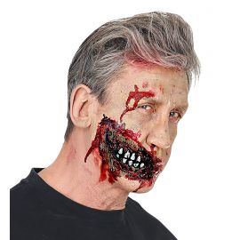 Protesis mandibula