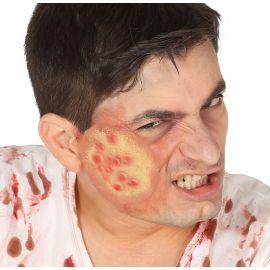 Cicatriz ampollas latex